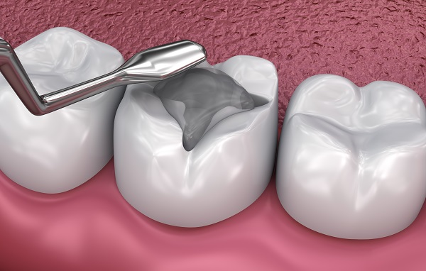 Ways That A Dental Filling Can Improve Your Oral Health