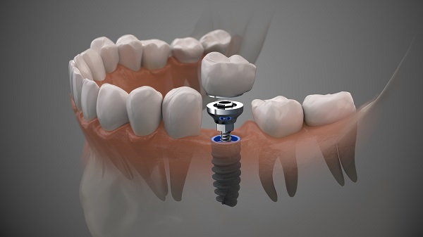 Who Is A Candidate For Dental Implants?